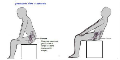 Поза для сидения при переломе копчика