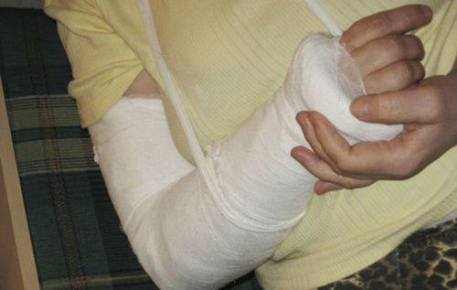 Гипсовая повязка на руку
