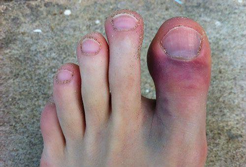 Травма первого пальца ноги