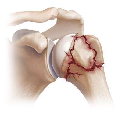 Чрезмыщелковый перелом плечевой кости со смещением история болезни