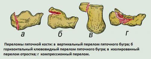 Виды переломов пятки
