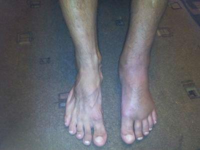 Отек ноги при переломе стопы