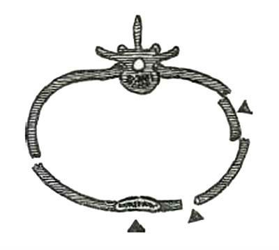 Схема множественного флотирующего перелома ребра