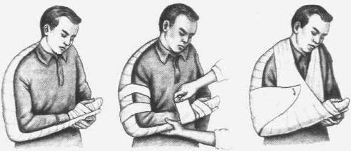 Шина при переломе руки