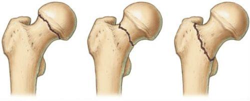 Виды переломов бедренной шейки
