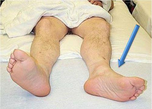 Отведение ноги в сторону при переломе бедренной шейки