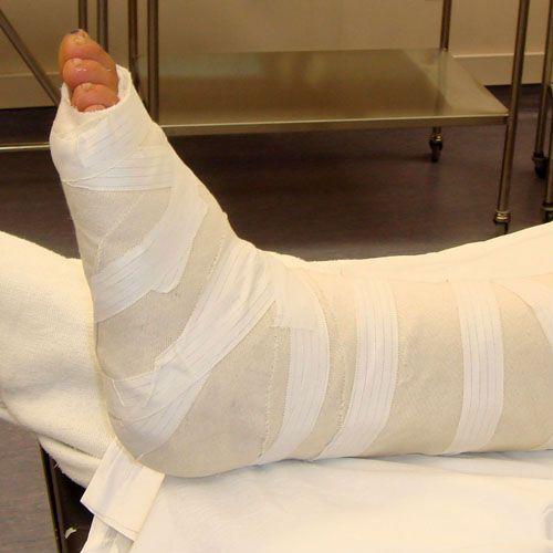 Гипсовая повязка для ноги