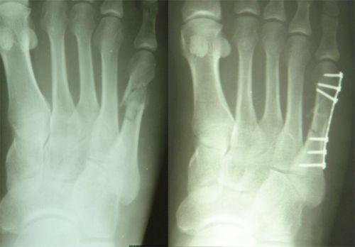 Перелом костей стопы