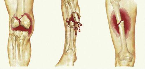 Переломы костей ноги