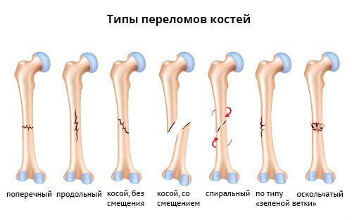 Типы переломов костей