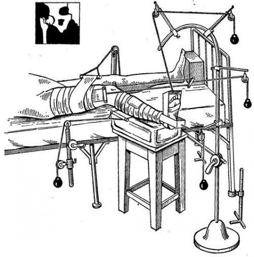 Скелетное вытяжение при повреждении бедра