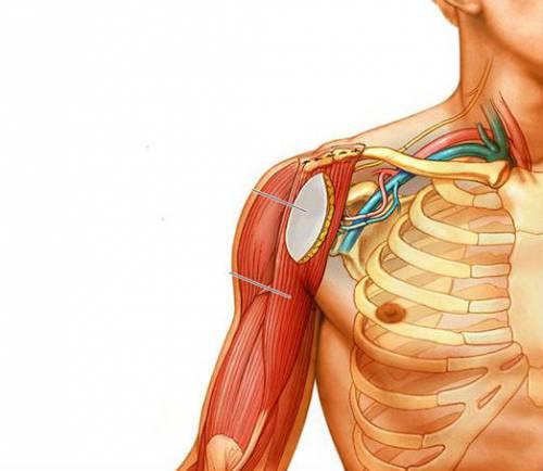 Плексит плечевого нерва лечение
