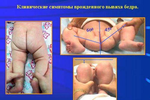 Врожденный вывих бедра у ребенка