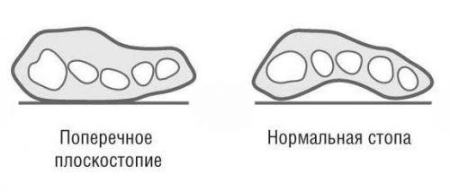 Схема нормальной и деформированной стопы