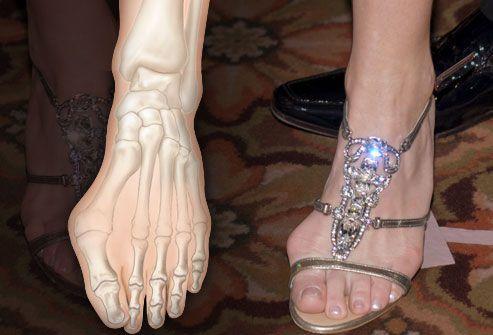 Шишка на ноге и обувь