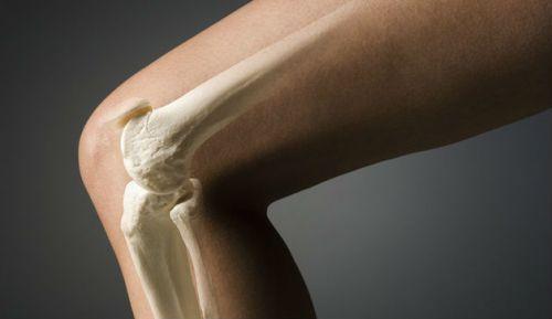 posttravm-artrit-3-500x289