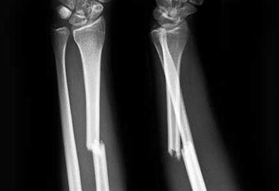 Перелом костей
