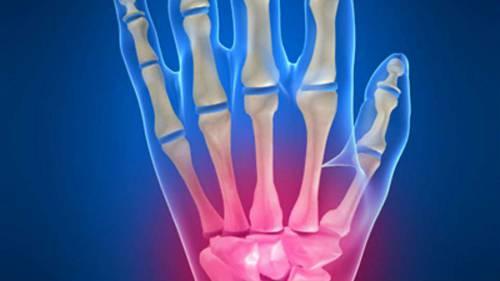 Повреждение кисти руки