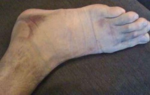 Внешний вид ноги после снятия гипсовой повязки