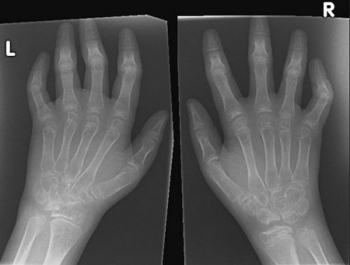 Рентгенограмма кистей рук