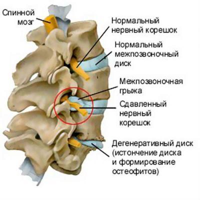 Спинно мозговые корешки