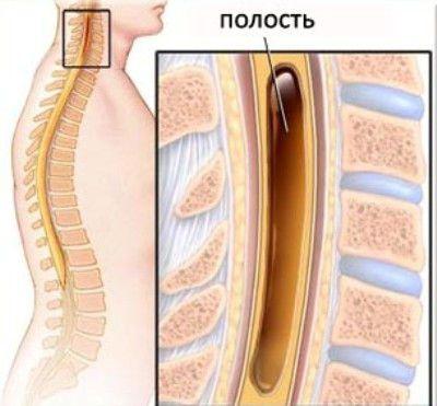 Полость в спинном мозге