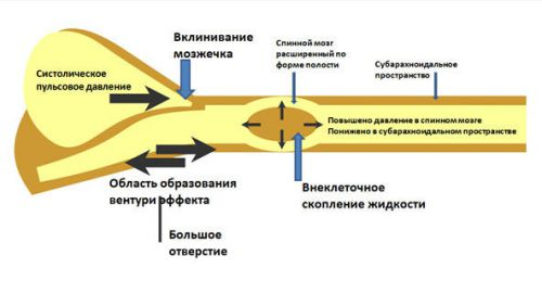 Развитие сирингомиелии при аномалии Арнольда-Киари