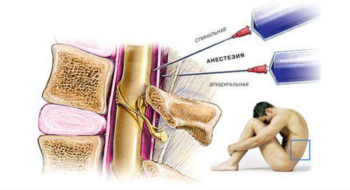 Спинальная и эпидуральная анестезия