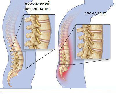 Спондилит грудного отдела позвоночника