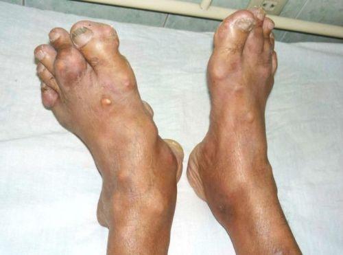Тофусы на ногах