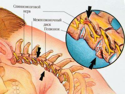 Вертеброгенная цервикоторакалгия что это такое