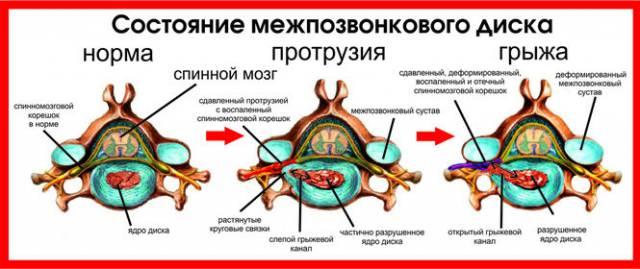 Механизм развития межпозвоночной грыжи