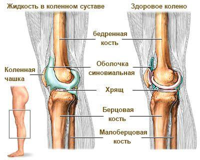 Суставная жидкость в коленном суставе