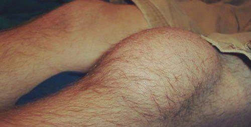 Жидкость в колене симптомы