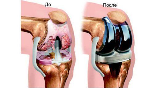 Артропластика колена