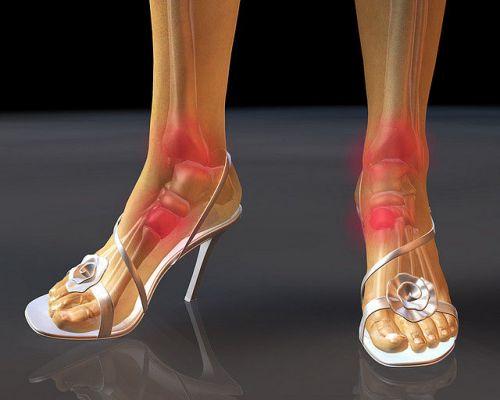 Ходьба в туфлях на каблуках