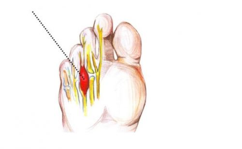 Неврома между пальцами