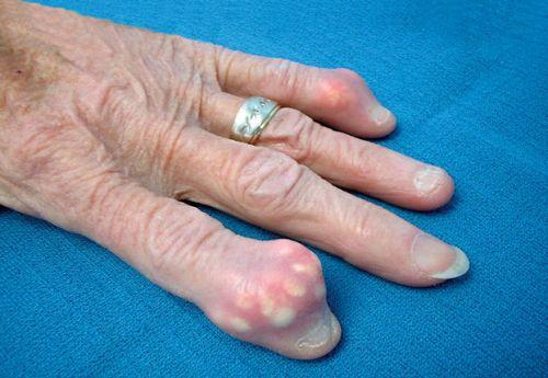 Тофусы на пальце