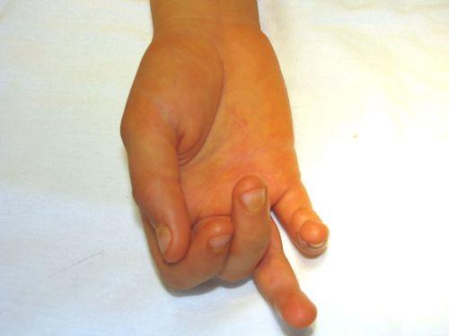 Пальцы при лигаментите