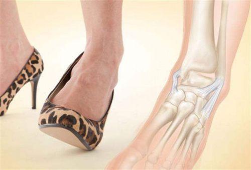 Вывих ноги на каблуках
