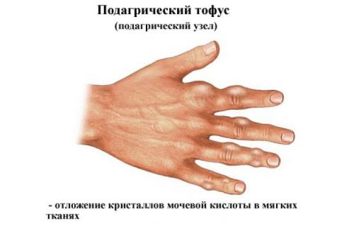 болит сустав на левой руке указательный палец thumbnail