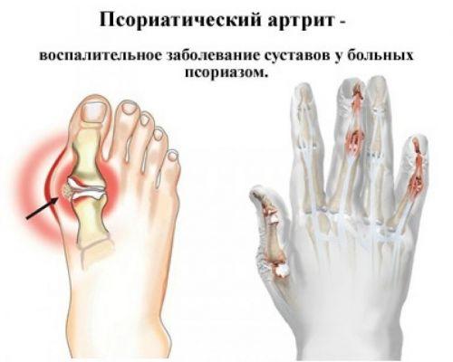 Изображение - Сустав указательного пальца левой руки bltsust-ukazatelnogo-4-500x400