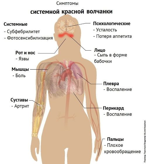 Изображение - Сустав указательного пальца левой руки bltsust-ukazatelnogo-6-500x561