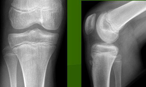 Рентген коленного сустава
