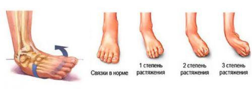 Растяжение связок стопы