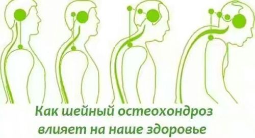 Болит шея сзади и затылок
