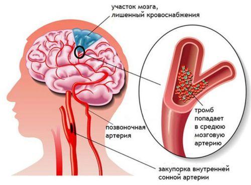 болит шея в основании черепа thumbnail