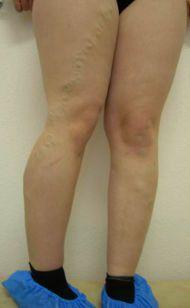 Воспаление мышц коленного сустава
