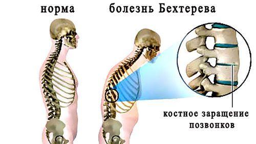Скелет при болезни Бехтерева