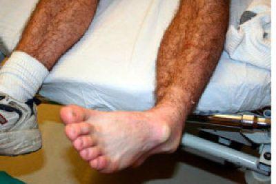 Вывих голеностопа